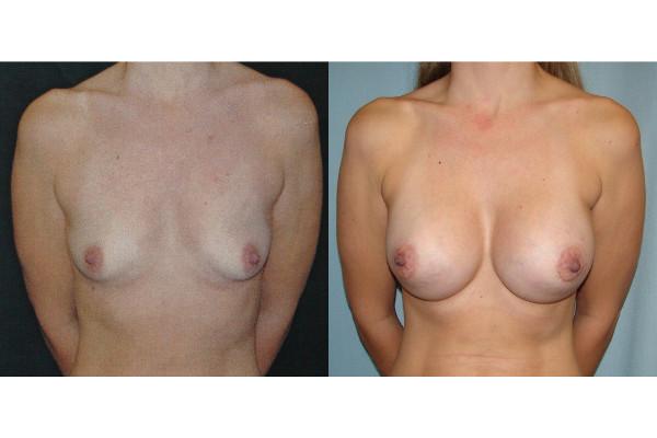 breast-augmentation-before-and-after-virginia-beach-plastic-surgeon-VA-101-JSJ