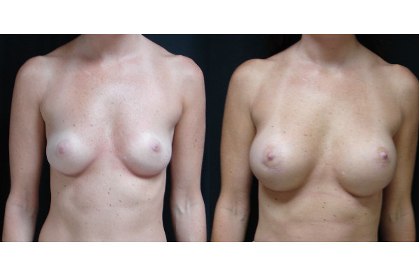 breast-augmentation-before-and-after-virginia-beach-plastic-surgeon-VA-102-JSA