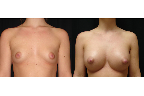 breast-augmentation-before-and-after-virginia-beach-plastic-surgeon-VA-102-JSJ