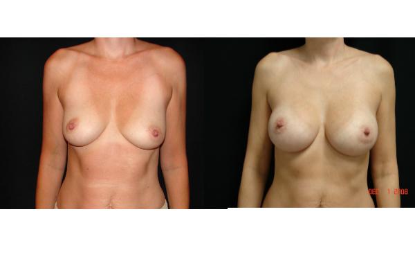 breast-augmentation-before-and-after-virginia-beach-plastic-surgeon-VA-103-JSA