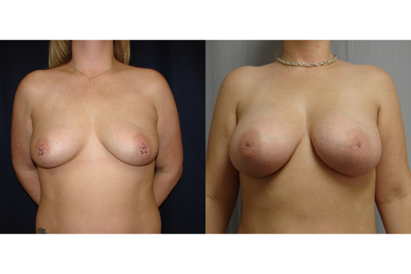 breast-augmentation-before-and-after-virginia-beach-plastic-surgeon-VA-103-JSJ
