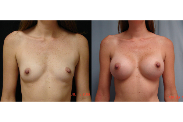 breast-augmentation-before-and-after-virginia-beach-plastic-surgeon-VA-103-MJD