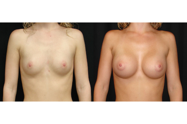 breast-augmentation-before-and-after-virginia-beach-plastic-surgeon-VA-104-JSA