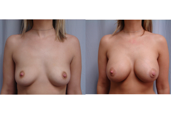 breast-augmentation-before-and-after-virginia-beach-plastic-surgeon-VA-104-JSJ