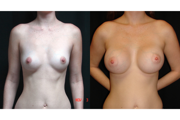 breast-augmentation-before-and-after-virginia-beach-plastic-surgeon-VA-104-MJD
