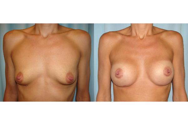 breast-augmentation-before-and-after-virginia-beach-plastic-surgeon-VA-107-JSJ