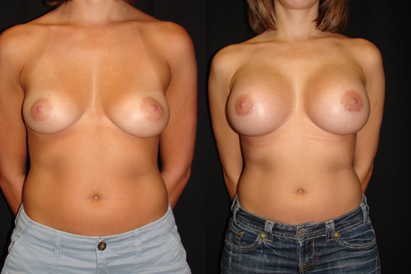 breast-augmentation-before-and-after-virginia-beach-plastic-surgeon-VA-107-MJD