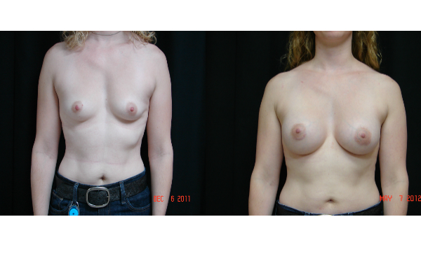 breast-augmentation-before-and-after-virginia-beach-plastic-surgeon-VA-109-JSA