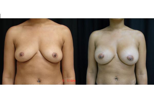 breast-augmentation-before-and-after-virginia-beach-plastic-surgeon-VA-J105-JSJ