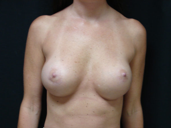 breast-augmentation-post-op-1-virginia-beach-plastic-surgeon-VA-102-JSA