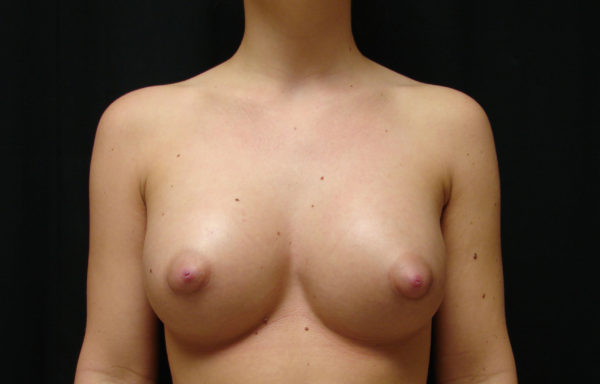 breast-augmentation-post-op-1-virginia-beach-plastic-surgeon-VA-102-JSJ