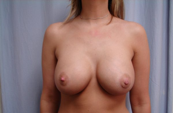breast-augmentation-post-op-1-virginia-beach-plastic-surgeon-VA-104-JSJ