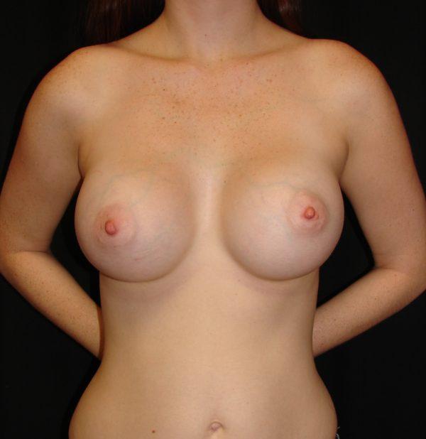 breast-augmentation-post-op-1-virginia-beach-plastic-surgeon-VA-104-MJD