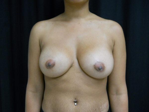 breast-augmentation-post-op-1-virginia-beach-plastic-surgeon-VA-105-JSJ