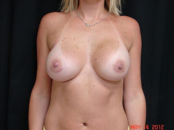 breast-augmentation-post-op-1-virginia-beach-plastic-surgeon-VA-106-JSA