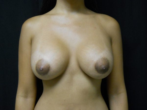 breast-augmentation-post-op-1-virginia-beach-plastic-surgeon-VA-106-JSJ