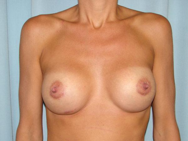 breast-augmentation-post-op-1-virginia-beach-plastic-surgeon-VA-107-JSJ