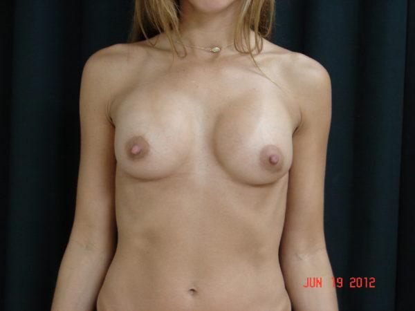 breast-augmentation-post-op-1-virginia-beach-plastic-surgeon-VA-108-JSA