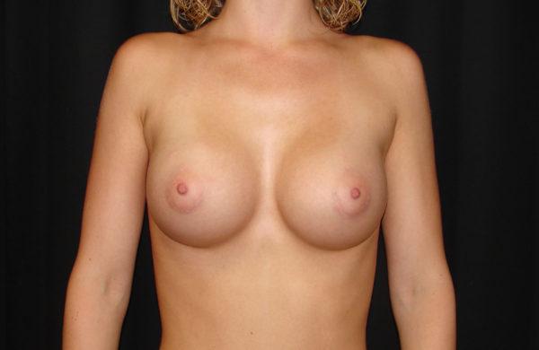 breast-augmentation-post-op-1-virginia-beach-plastic-surgeons-VA-104-JSA