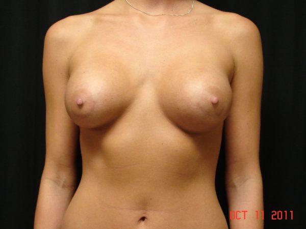 breast-augmentation-post-op-1-virginia-beach-plastic-surgeons-VA-105-JSA