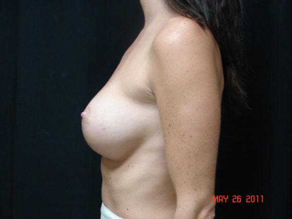 breast-augmentation-post-op-2-virginia-beach-plastic-surgeon-VA-102-JSA