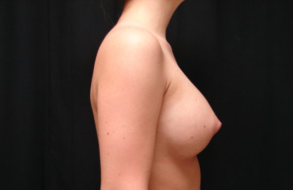 breast-augmentation-post-op-2-virginia-beach-plastic-surgeon-VA-102-JSJ