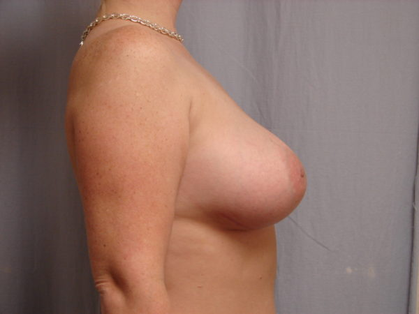 breast-augmentation-post-op-2-virginia-beach-plastic-surgeon-VA-103-JSJ
