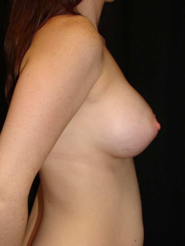 breast-augmentation-post-op-2-virginia-beach-plastic-surgeon-VA-104-MJD