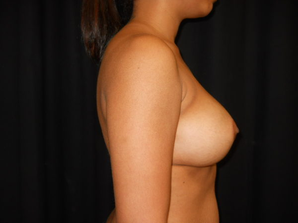 breast-augmentation-post-op-2-virginia-beach-plastic-surgeon-VA-105-JSJ