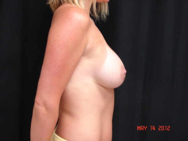 breast-augmentation-post-op-2-virginia-beach-plastic-surgeon-VA-106-JSA