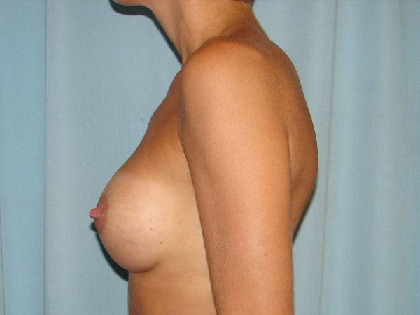breast-augmentation-post-op-2-virginia-beach-plastic-surgeon-VA-107-JSJ