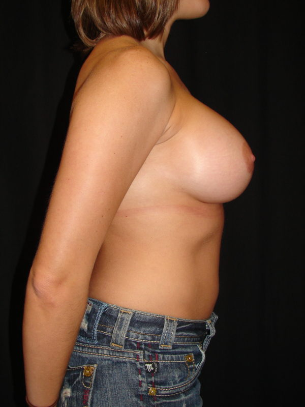 breast-augmentation-post-op-2-virginia-beach-plastic-surgeon-VA-107-MJD