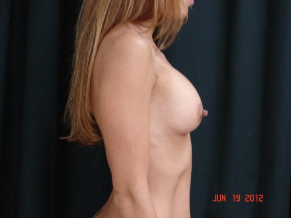 breast-augmentation-post-op-2-virginia-beach-plastic-surgeon-VA-108-JSA