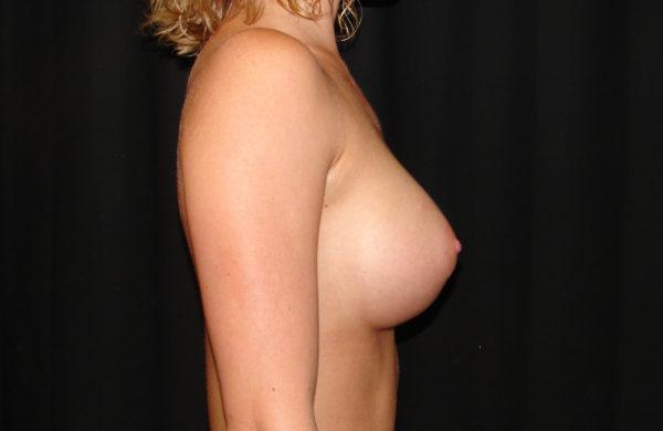 breast-augmentation-post-op-2-virginia-beach-plastic-surgeons-VA-104-JSA