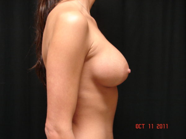 breast-augmentation-post-op-2-virginia-beach-plastic-surgeons-VA-105-JSA