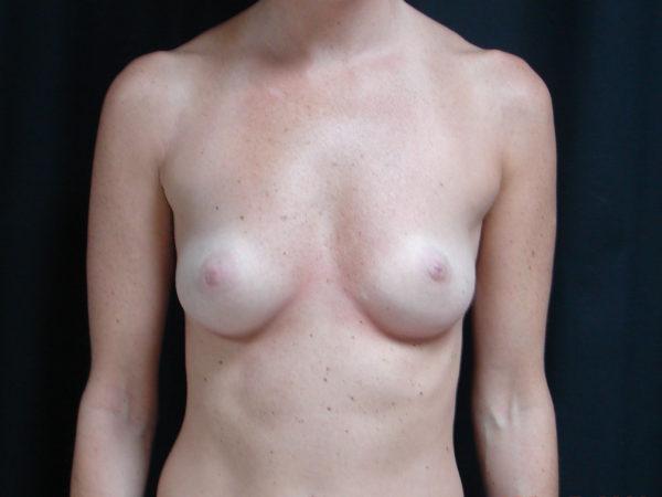 breast-augmentation-pre-op-1-virginia-beach-plastic-surgeon-VA-102-JSA