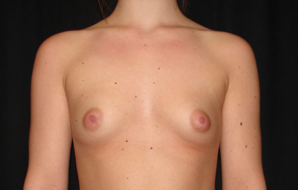 breast-augmentation-pre-op-1-virginia-beach-plastic-surgeon-VA-102-JSJ
