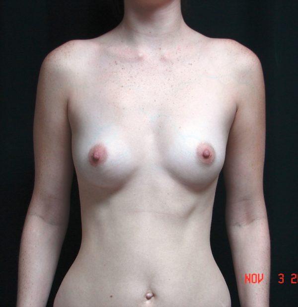 breast-augmentation-pre-op-1-virginia-beach-plastic-surgeon-VA-104-MJD