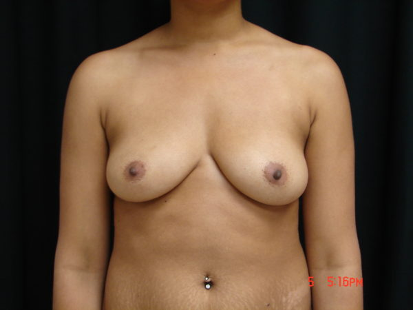 breast-augmentation-pre-op-1-virginia-beach-plastic-surgeon-VA-105-JSJ