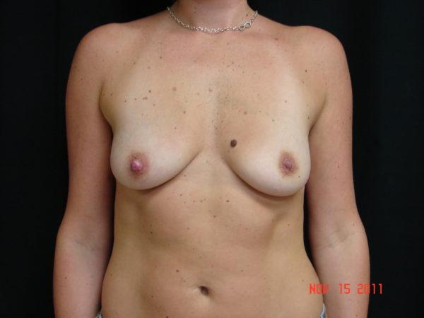 breast-augmentation-pre-op-1-virginia-beach-plastic-surgeon-VA-106-JSA