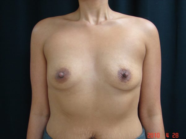 breast-augmentation-pre-op-1-virginia-beach-plastic-surgeon-VA-106-JSJ