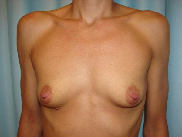 breast-augmentation-pre-op-1-virginia-beach-plastic-surgeon-VA-107-JSJ
