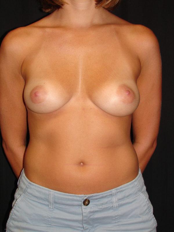 breast-augmentation-pre-op-1-virginia-beach-plastic-surgeon-VA-107-MJD