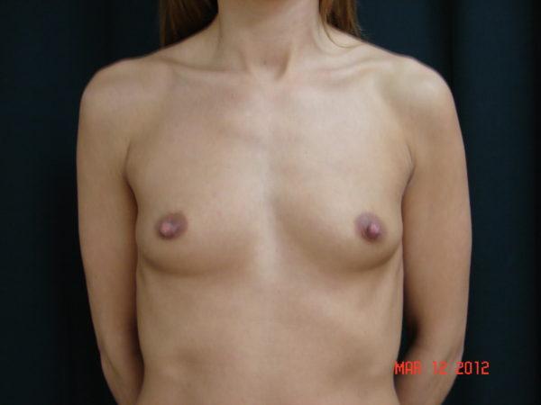 breast-augmentation-pre-op-1-virginia-beach-plastic-surgeon-VA-108-JSA