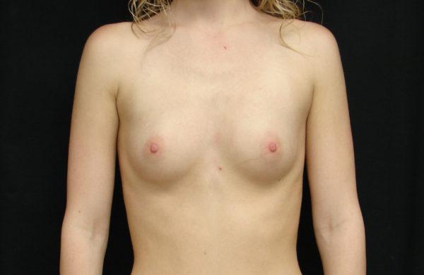 breast-augmentation-pre-op-1-virginia-beach-plastic-surgeons-VA-104-JSA