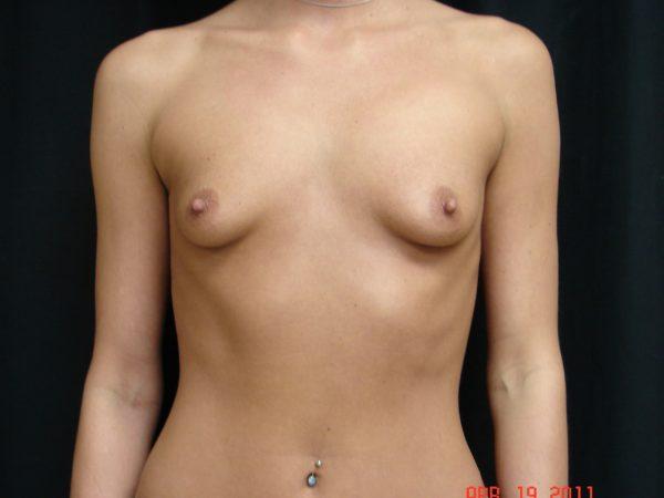 breast-augmentation-pre-op-1-virginia-beach-plastic-surgeons-VA-105-JSA