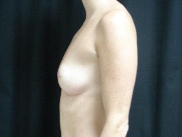 breast-augmentation-pre-op-2-virginia-beach-plastic-surgeon-VA-102-JSA