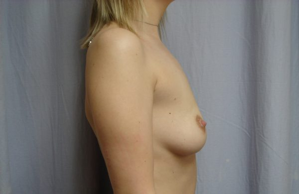 breast-augmentation-pre-op-2-virginia-beach-plastic-surgeon-VA-104-JSJ