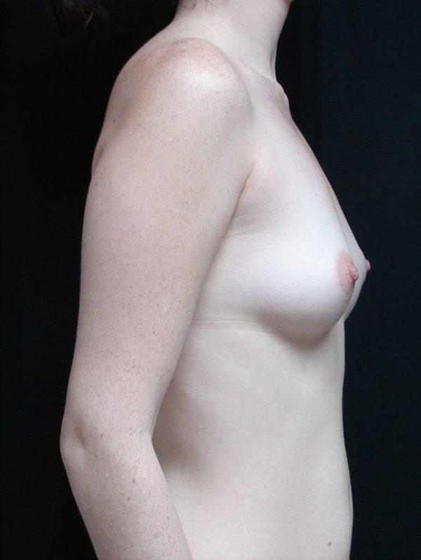 breast-augmentation-pre-op-2-virginia-beach-plastic-surgeon-VA-104-MJD