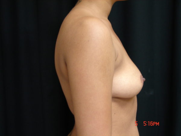 breast-augmentation-pre-op-2-virginia-beach-plastic-surgeon-VA-105-JSJ